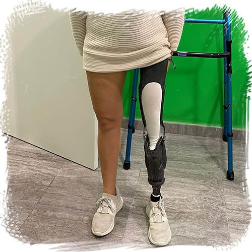 Dolor crónico, se ve la pierna ortopédica